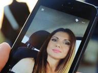 Carla, bruciata dall'ex: «Sono stata fortunata, lotto per tutte le donne»